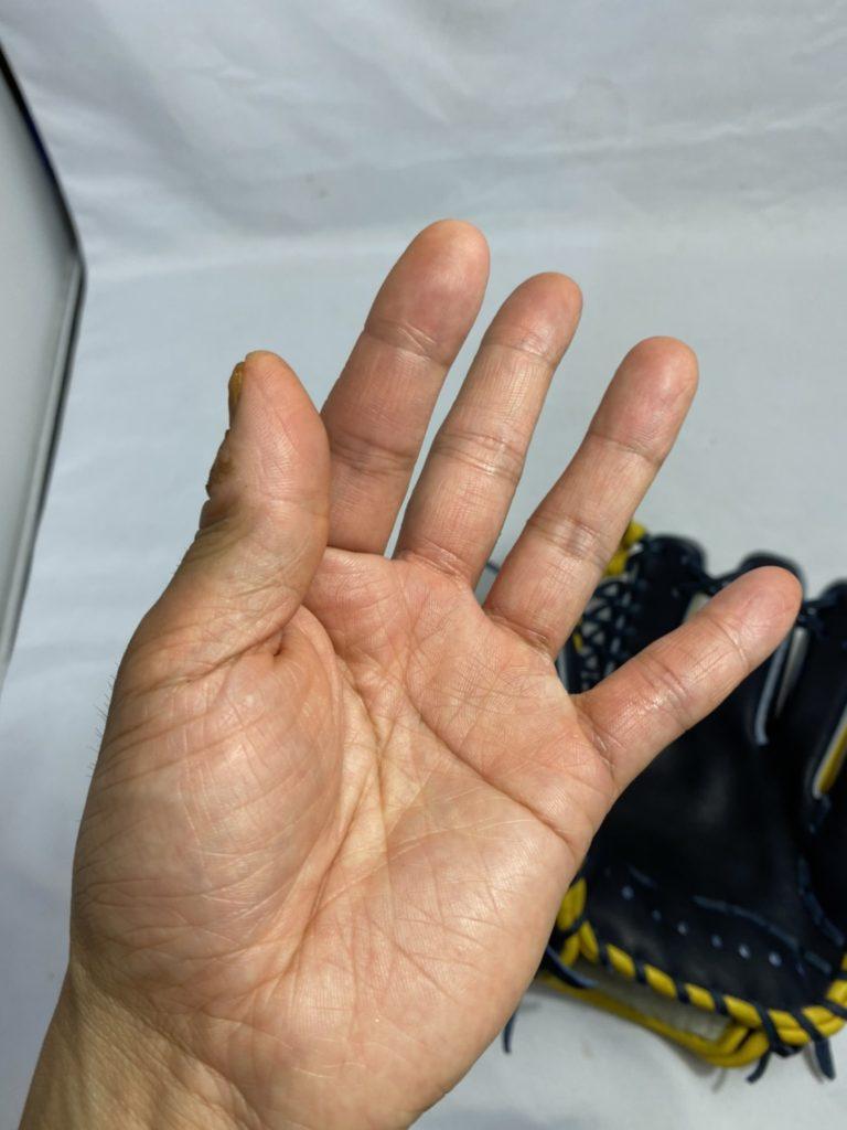 親指と人差指で摘む